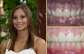 Cosmetic Dentistry Great Results
