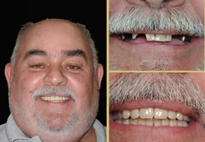 Implant Dentistry Great Results